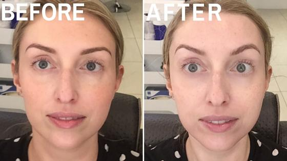 Unreal Peels How to Get Better Skin in 1 Hour