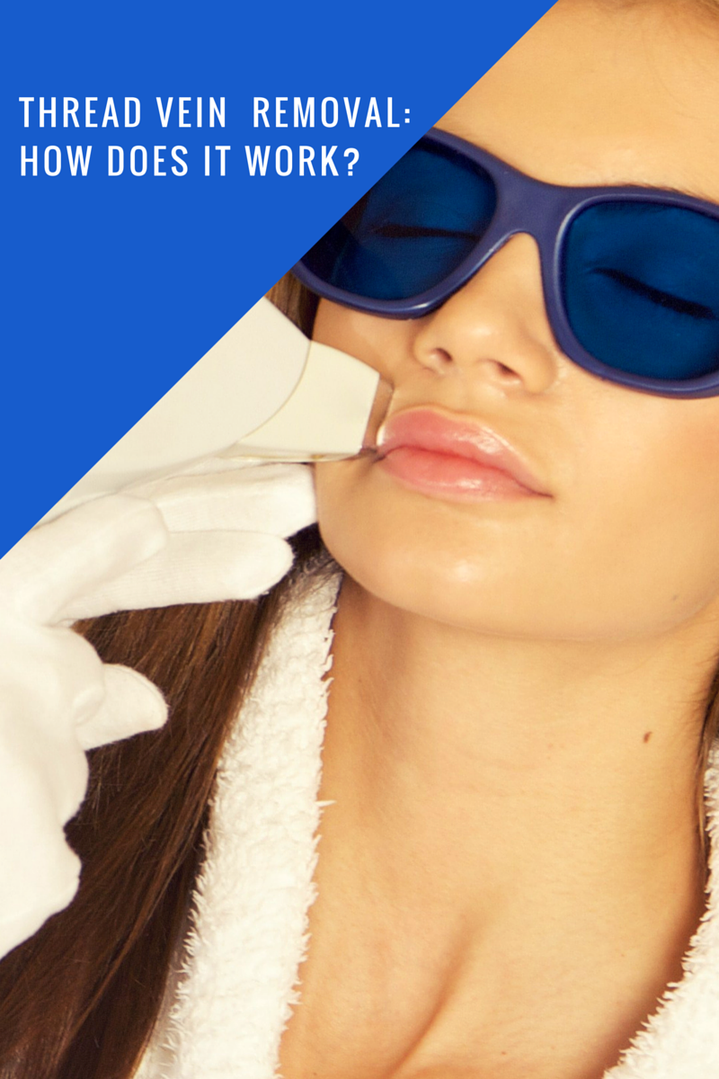 Thread Vein Removal: How Does It Work?